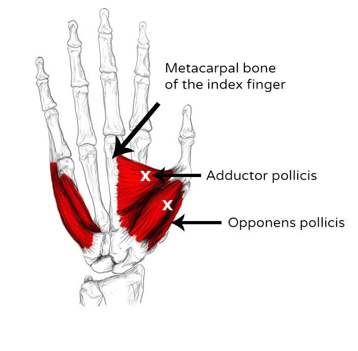 Opponens And Adductor Pollicis Pain Trigger Points