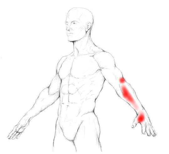 Brachioradialis Muscle Pain Trigger Points