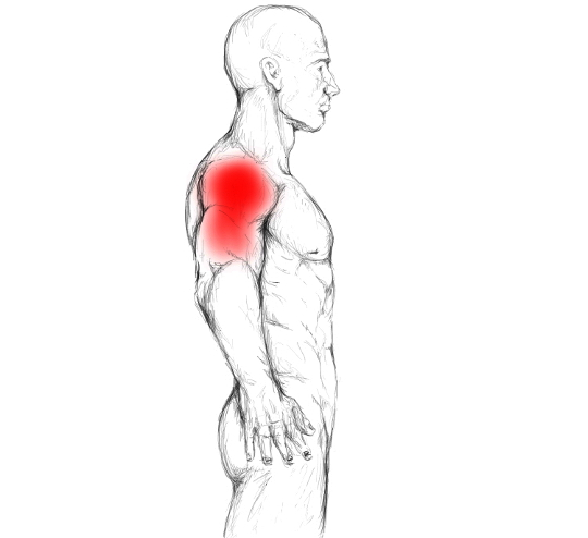 Deltoid Muscle Pain Trigger Points