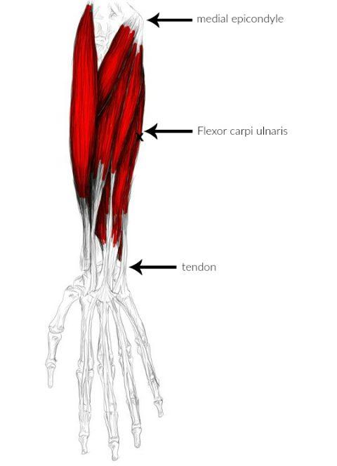 flexor carpi ulnaris pain trigger points