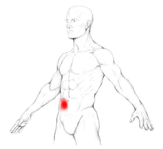 erector spinae muscle pain trigger points