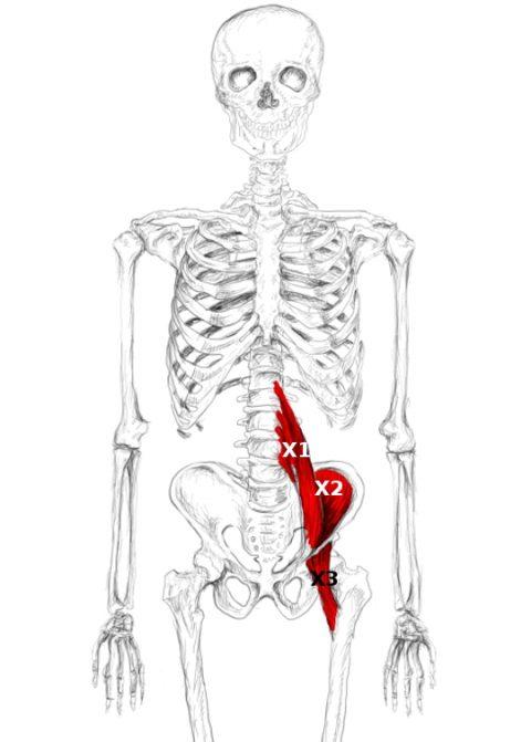 Iliopsoas Muscle Pain Trigger Points