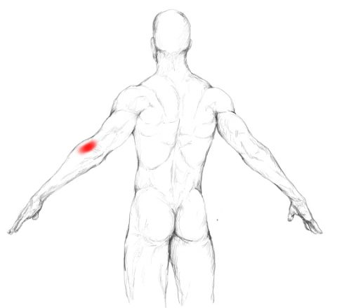 Anconeus muscle pain & trigger points