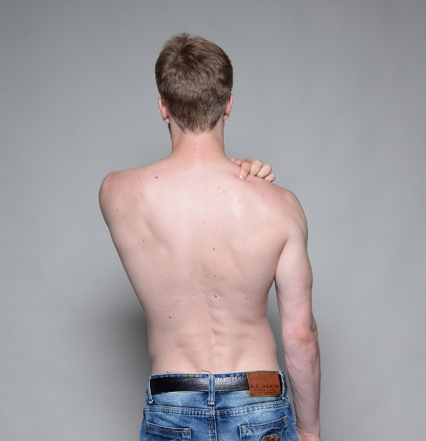 Levator scapulae muscle pain & trigger points