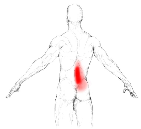 Iliopsoas muscle pain & trigger points