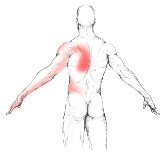 latissimus dorsi muscle pain & trigger points, Human Body
