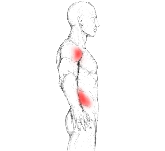 Latissimus dorsi muscle pain & trigger points