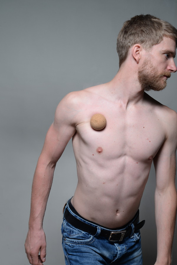 Pectoralis Major Muscle Pain Amp Trigger Points