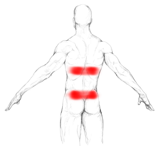 Rectus abdominis pain & trigger points