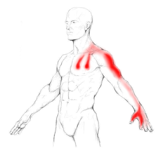Scalenes pain & trigger points