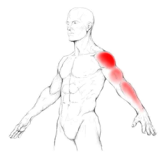 Supraspinatus pain & trigger points