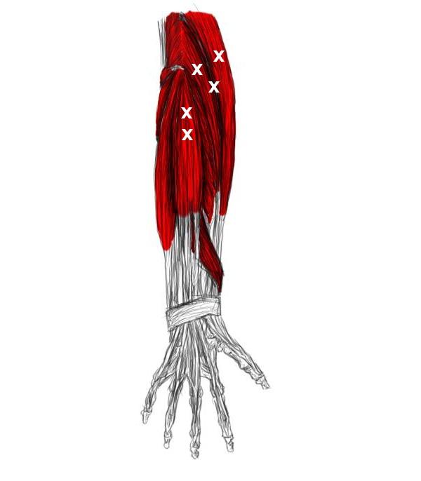 Treat A Tennis Elbow Epicondylitis Yourself