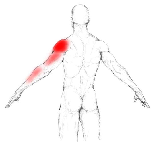 Teres major muscle pain & trigger points