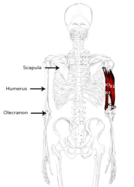 Triceps brachii muscle pain & trigger points