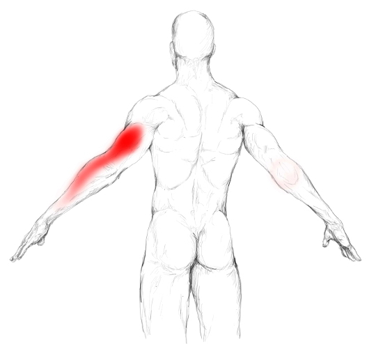 Triceps Brachii Muscle Pain Trigger Points